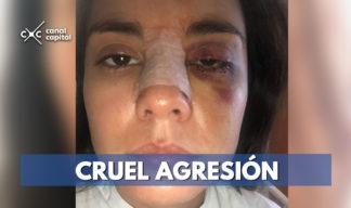 Eileen Moreno cruel agresión