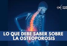 Lo que debe saber sobre la osteopororsis