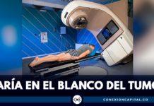 técnica de radioterapia en colombia